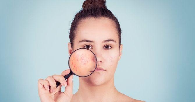 limpieza facial adolescentes